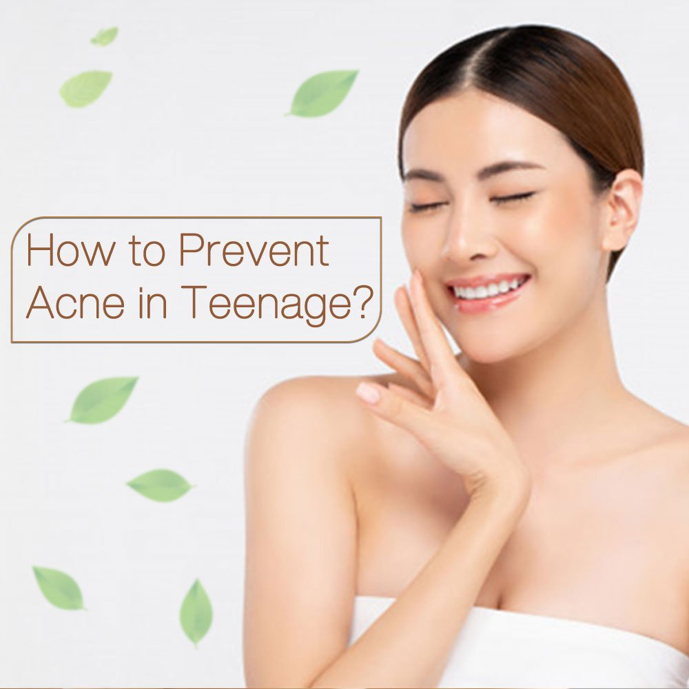 How-to-Prevent-Acne-in-Teenage.-(-Thumbnail-image)