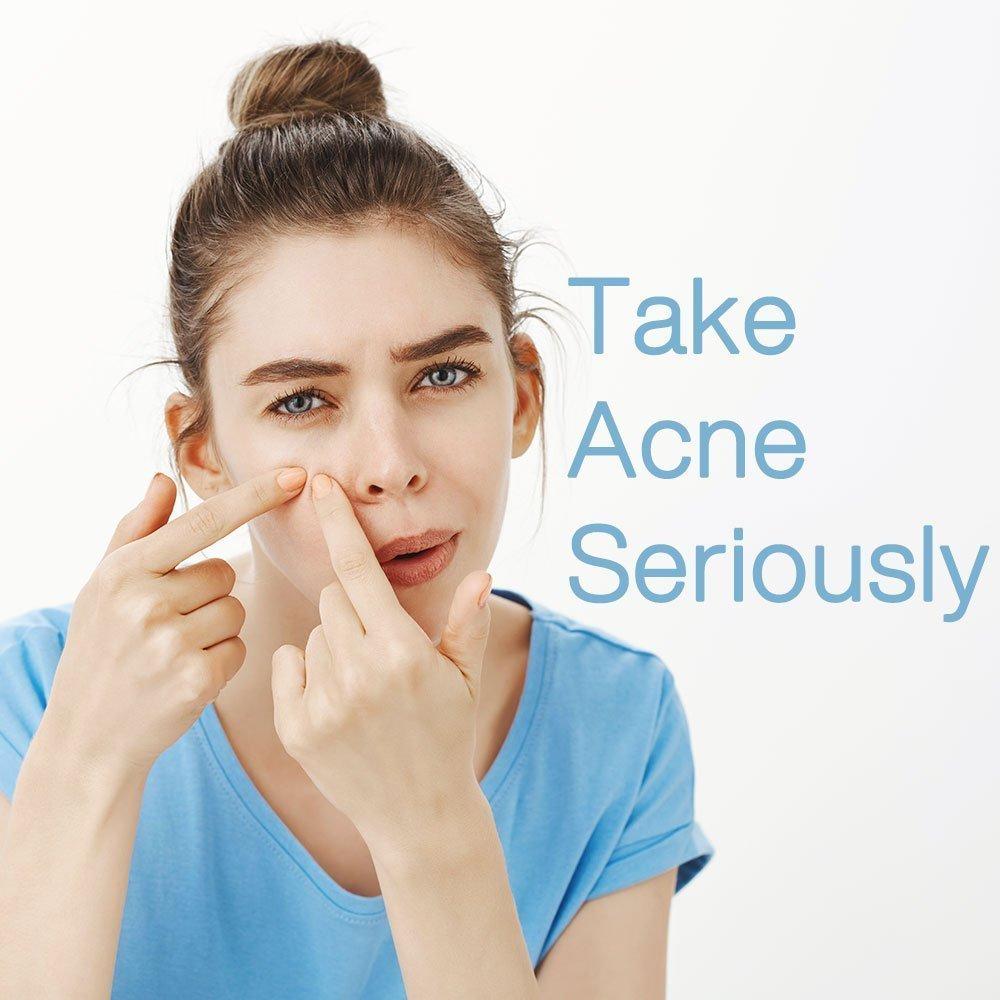 Take-acne-seriously